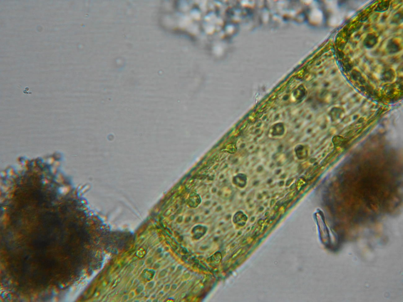 アオミドロの顕微鏡写真ミクロ観察6